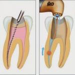 Viêm tủy răng – Nguyên nhân, hậu quả và hướng điều trị
